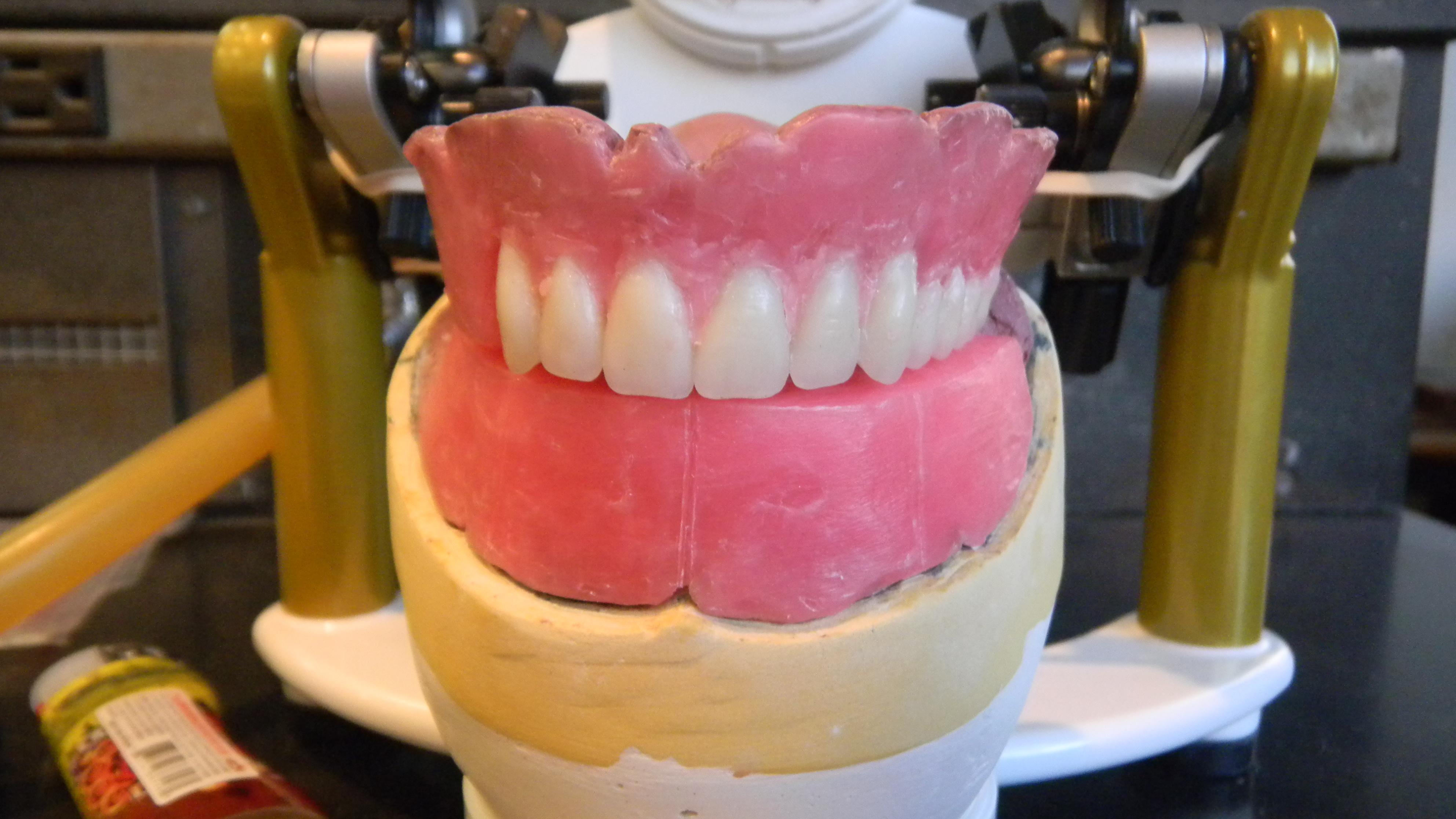 Complete Dentures | claudia leyton\'s ePortfolio