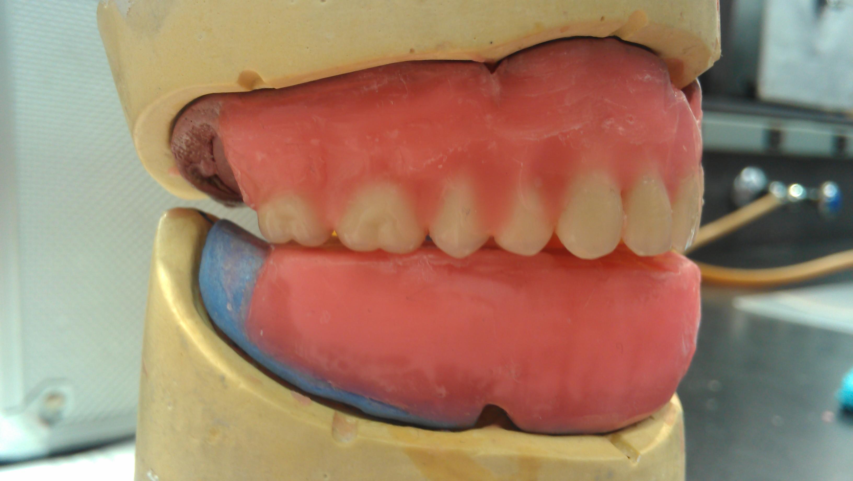maxillary posterior teeth