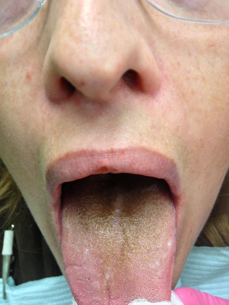 Hairy tongue remedy natural