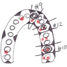 RESD 1115 Fixed Prosthodontics I